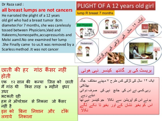 Dr Raza said : all breast lumps are not cancers He narrated the plight of a 12 years old girl who had a breast tumor 8cm d...