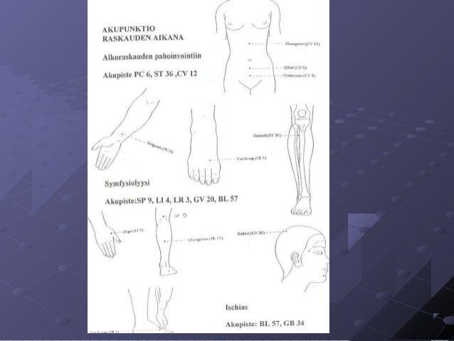 akupunktio synnytys