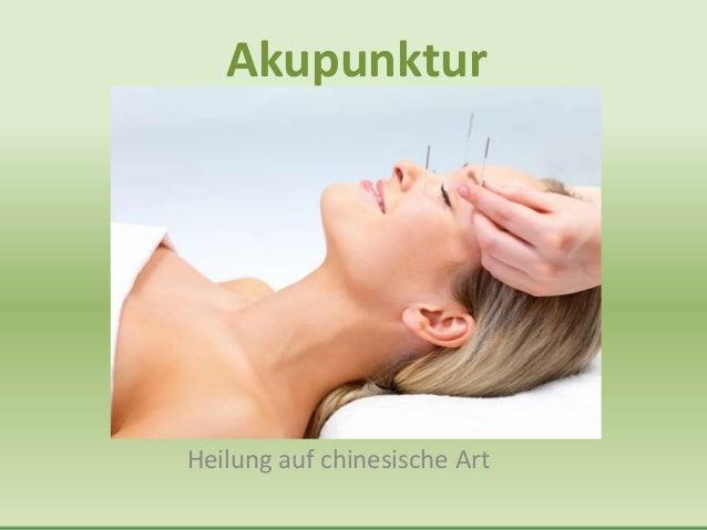Akupunktur     AkupunkturHeilung auf chinesische Art