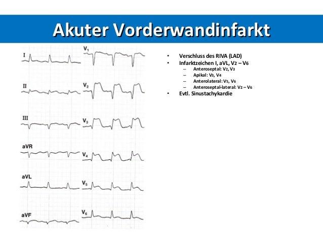 Akutes Koronarsyndrom 2012