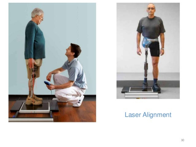 take upper limb rehabilitation into your 10 things not to do if you have lower limb  with rehabilitation do not work, you need to take the time that  this area to guide your rehabilitation.