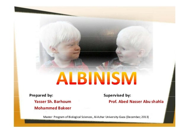 Prepared by:  epa ed by Yasser Sh. Barhoum Mohammed Bakeer   Supe sed by Supervised by: Prof. Abed Nasser Abu shahla   Mas...