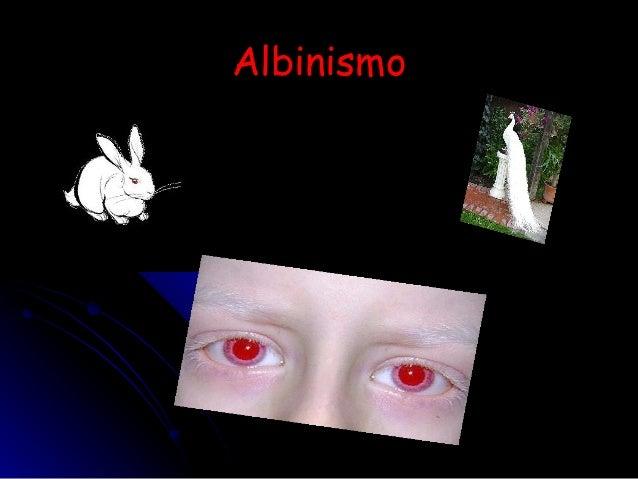 AAllbbiinniissmmoo