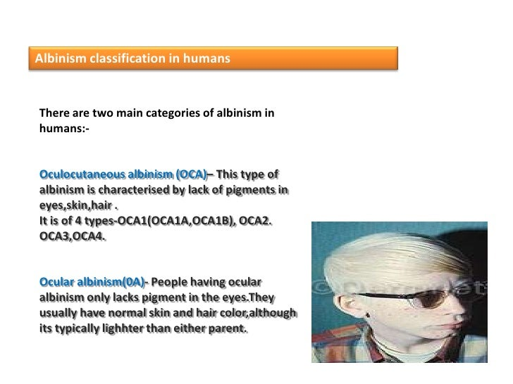 a description of oculocutaneous albinism which involves the absence of melanin In humans, there are two principal types of albinism: oculocutaneous, affecting the eyes, skin and hair, and ocular affecting the eyes only most people with oculocutaneous albinism appear white or very pale, as the melanin pigments responsible for brown, black, and some yellow colorations are not present.