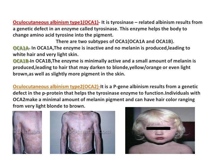 the genetic defect albinism essay Albinism is a group of genetic disorders characterized albinism comprises a group of hereditary disorders associated with hypopigmentation due to a defect in.