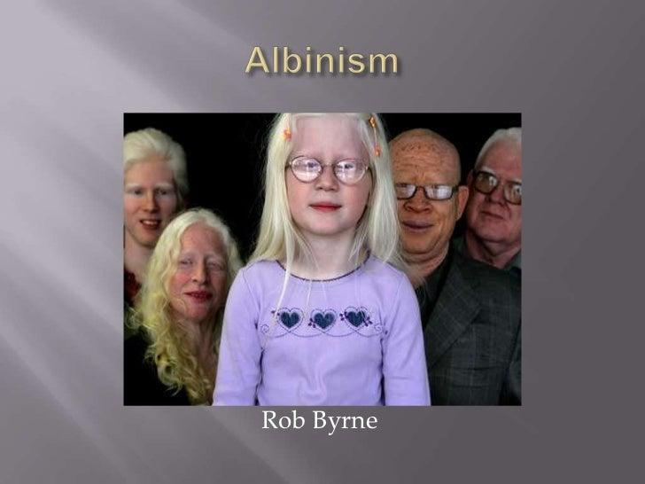 Albinism<br />                                  Rob Byrne<br />