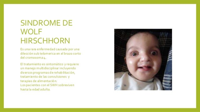 Sindrome de wolf hirschhorn pdf download for Aborto interno i sintomi