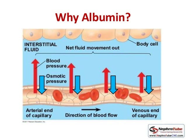 Albumin Use In Aki Ckd Dialysis Why When How 62190159