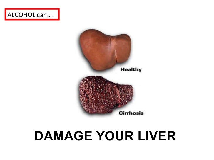 Alcohol Liver Before And After Pictures to Pin on ...