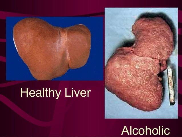 Drinking Alcohol With Hepatitis