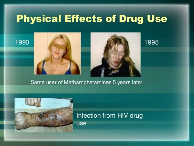 the psychological and physical effects of cocaine use Crack abuse destroys lives from the inside out it produces dangerous physical and psychological side effects that not only harm the body and mind, but also harm the.