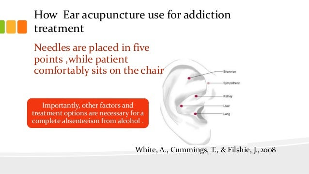 How Ear acupuncture use for addiction treatment Needles are placed in five points ,while patient comfortably sits on the c...