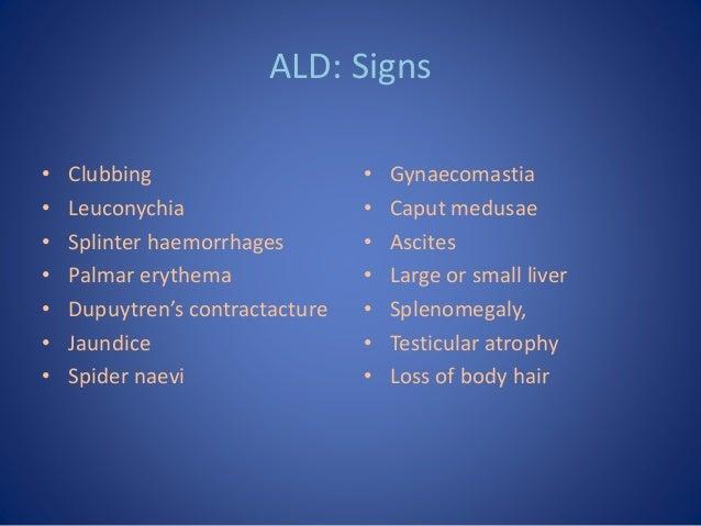 ALD: Signs • Clubbing • Leuconychia • Splinter haemorrhages • Palmar erythema • Dupuytren's contractacture • Jaundice • Sp...