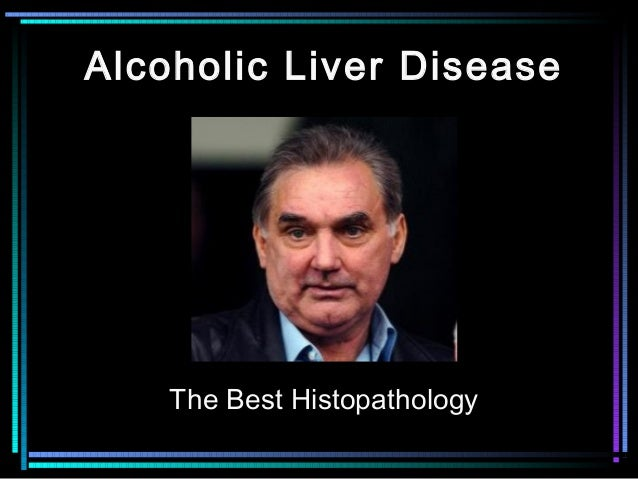 Alcoholic Liver Disease The Best Histopathology