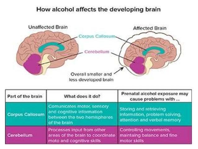Alcoholic liver disease in Pregnancy Slide 3