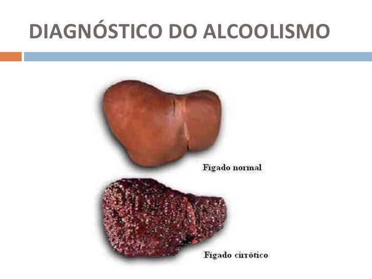 Tratamento de alcoolismo por psicólogos