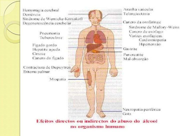 O que pode ser aplicado da dependência alcoólica