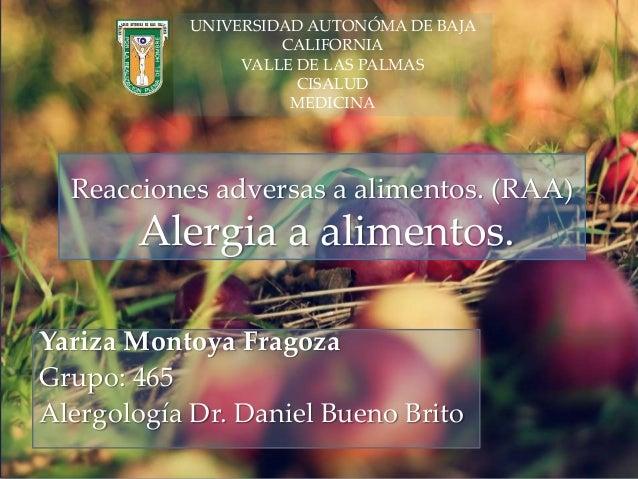 { Reacciones adversas a alimentos. (RAA) Alergia a alimentos. Yariza Montoya Fragoza Grupo: 465 Alergología Dr. Daniel Bue...