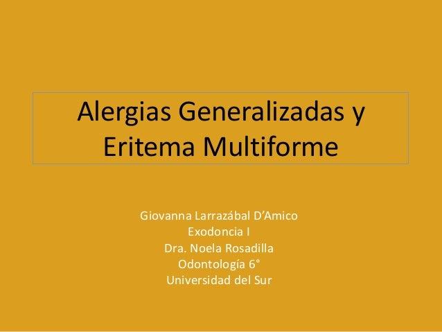 Alergias Generalizadas y  Eritema Multiforme     Giovanna Larrazábal D'Amico             Exodoncia I         Dra. Noela Ro...