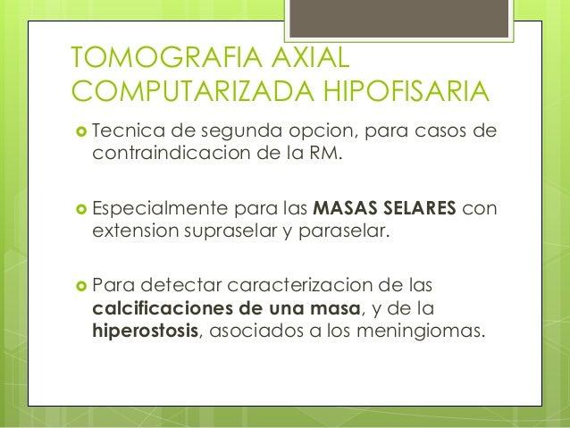 Pruebas diagnósticas de la hipófisis