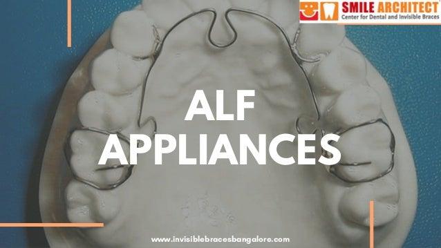 ALF APPLIANCES www.invisiblebracesbangalore.com