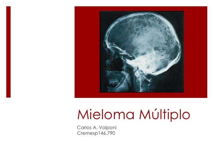 MielomaMúltiplo<br />Carlos A. Volponi<br />Cremesp146.790<br />