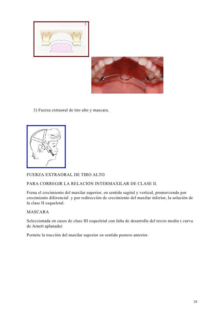 3) Fuerza extraoral de tiro alto y mascara.FUERZA EXTRAORAL DE TIRO ALTOPARA CORREGIR LA RELACION INTERMAXILAR DE CLASE II...