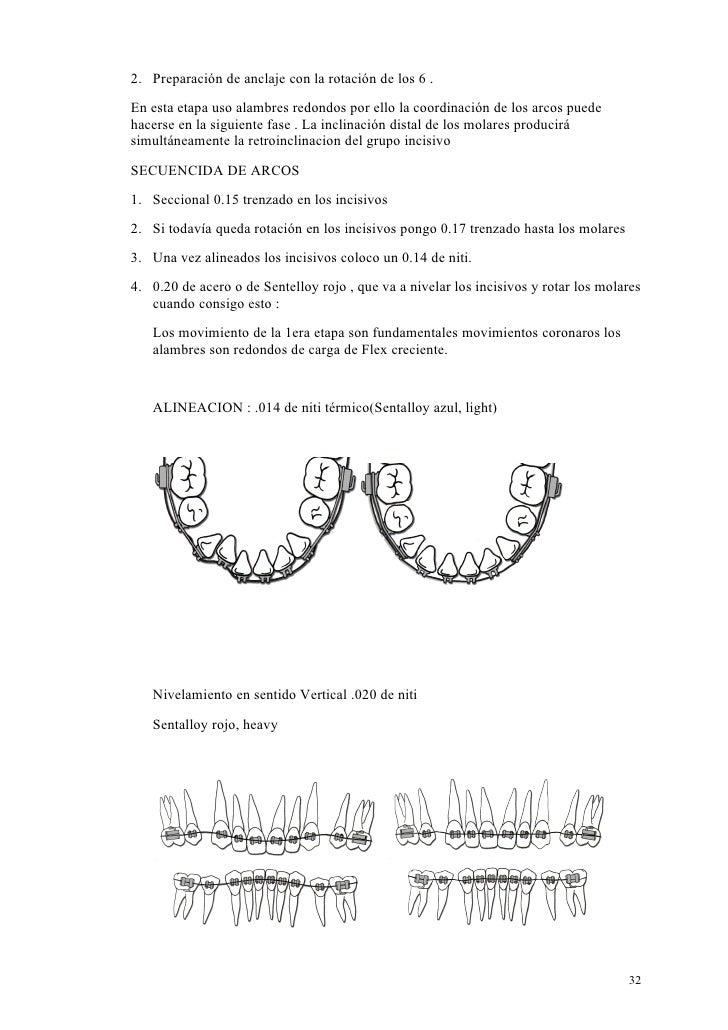 2. Preparación de anclaje con la rotación de los 6 .En esta etapa uso alambres redondos por ello la coordinación de los ar...