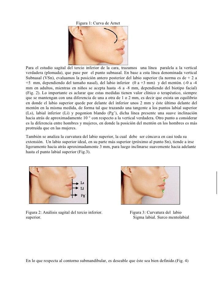 Figura 1: Curva de ArnetPara el estudio sagital del tercio inferior de la cara, trazamos una línea paralela a la verticalv...