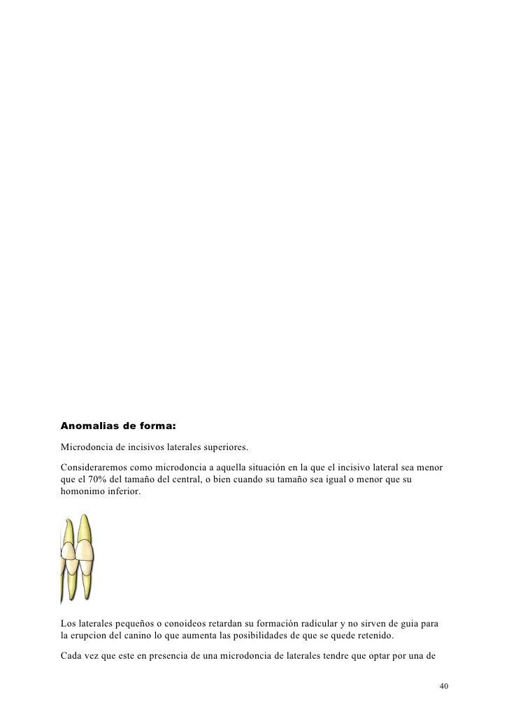 Anomalias de forma:Microdoncia de incisivos laterales superiores.Consideraremos como microdoncia a aquella situación en la...