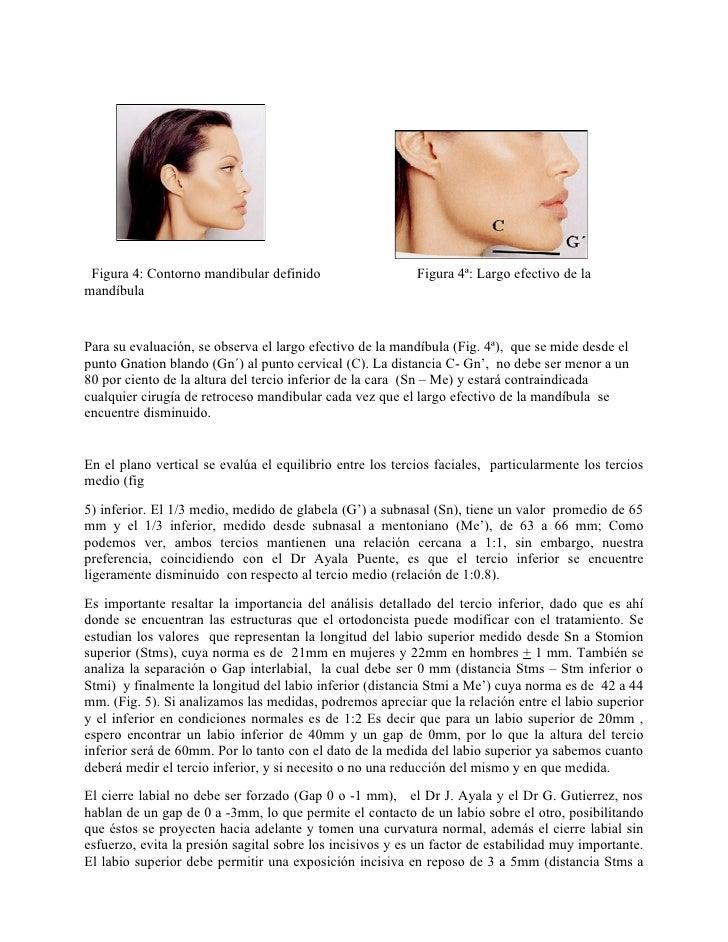 Figura 4: Contorno mandibular definido                    Figura 4ª: Largo efectivo de lamandíbulaPara su evaluación, se o...