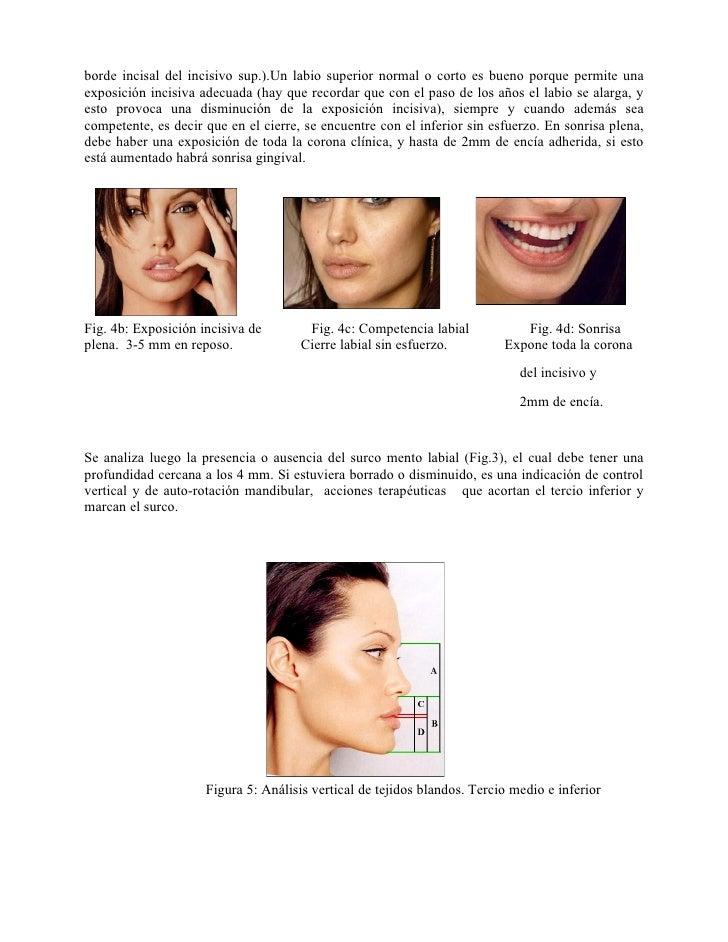 borde incisal del incisivo sup.).Un labio superior normal o corto es bueno porque permite unaexposición incisiva adecuada ...