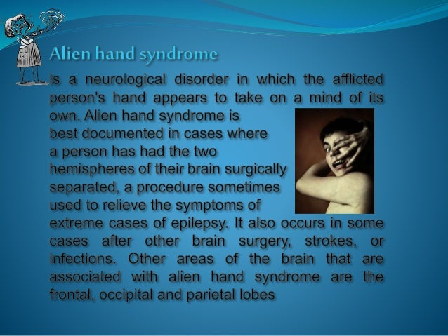 a study on the alien hand syndrome Alien hand syndrome, a rare neurological symptom, may be produced by a number of etiologies and more than one specific region of cerebral damage 1.