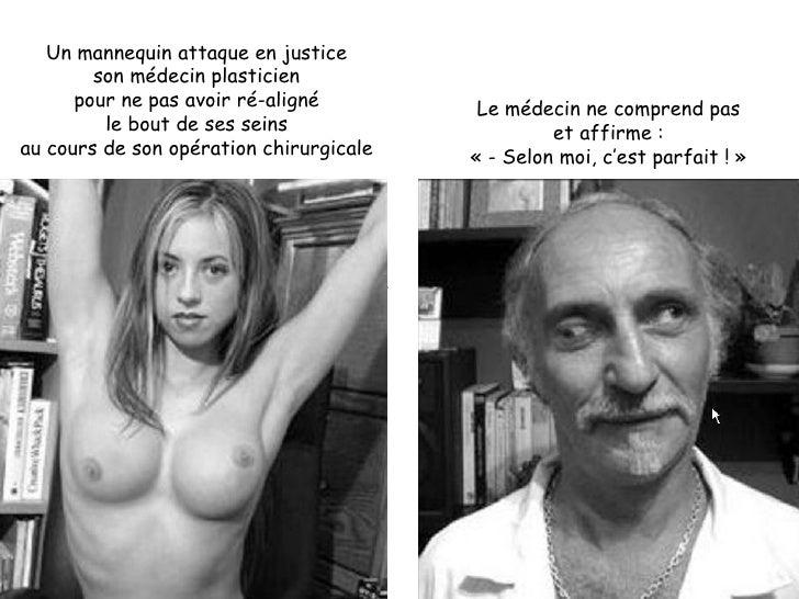 Un mannequin attaque en justice son médecin plasticien pour ne pas avoir ré-aligné le bout de ses seins au cours de son op...