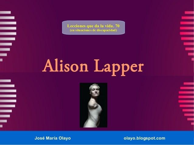 José María Olayo olayo.blogspot.com Alison Lapper Lecciones que da la vida. 70 (en situaciones de discapacidad)