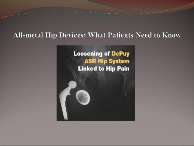 Hip joint replacement implants, also known as artificial hips, are used to replace damaged hip joints to improve mobility...