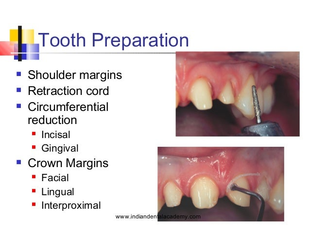 All Ceramic Dentistry Orthodontics Learn Orthodontics