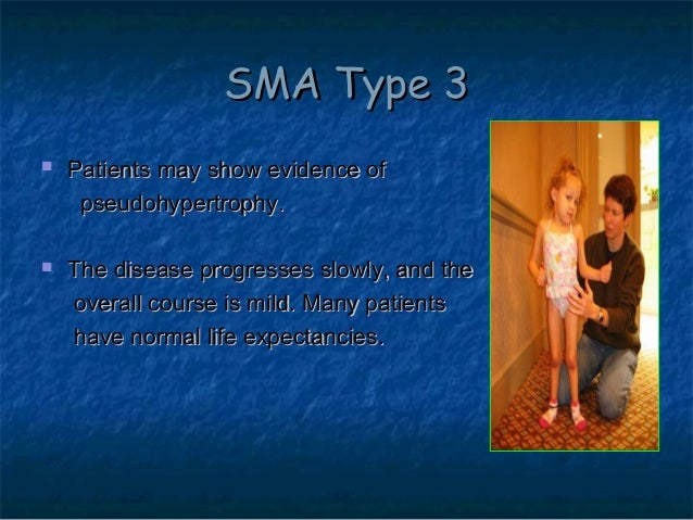 spinal muscular atrophy sma by allelieh