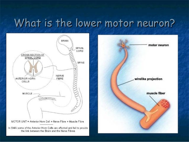 Spinal muscular atrophy sma by allelieh What is lower motor neuron disease