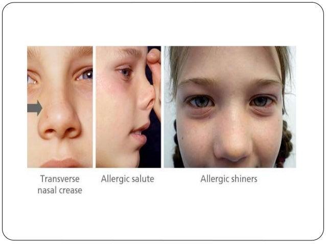 Allergic Disorders In Children