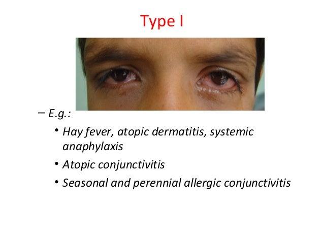 allergy and hypersensitivity: perrenial conjunctivitis, vernal conjun…, Skeleton
