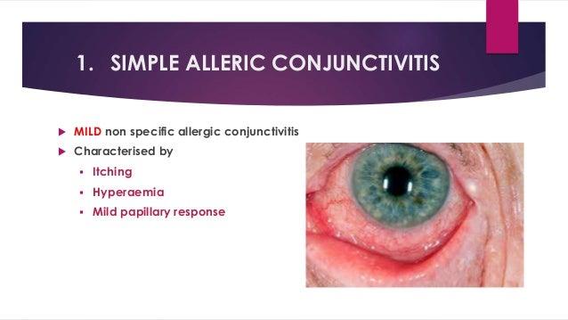 allergic conjuncticitis, Skeleton