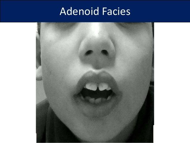 Adenoid Facies Adenoid facies 16