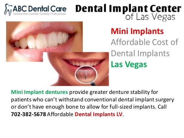 All on 4 the dental implant center las vegas