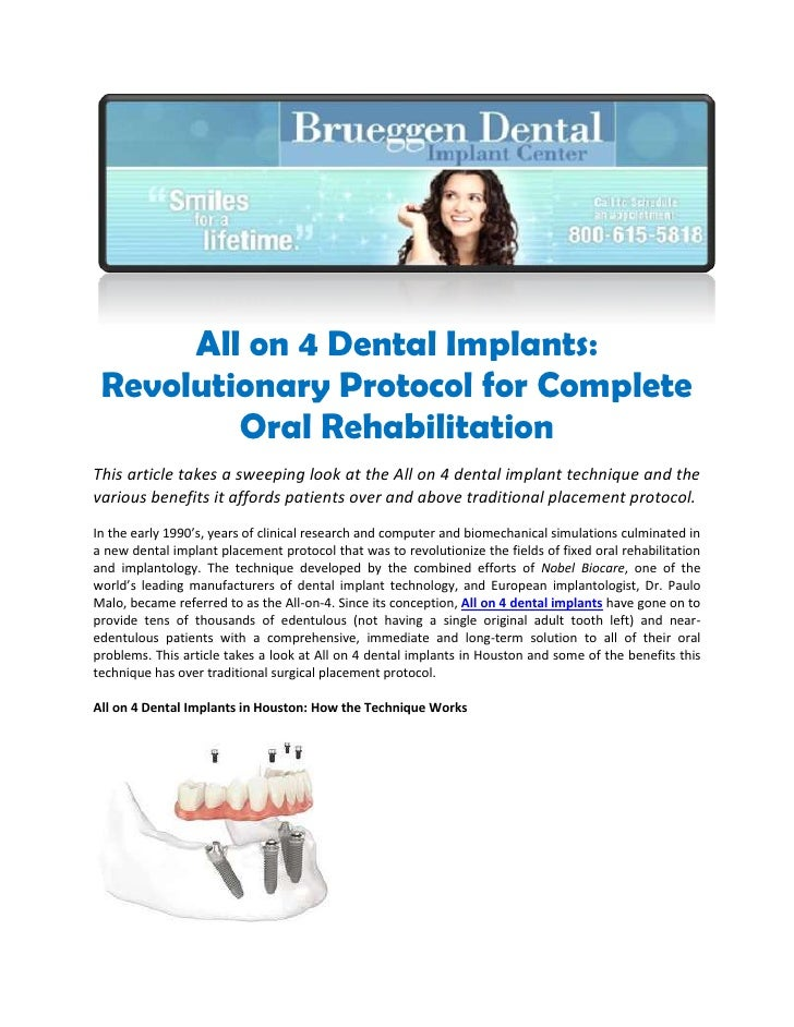 All on 4 Dental Implants: Revolutionary Protocol for Complete Oral Rehabilitation<br />This article takes a sweeping look ...