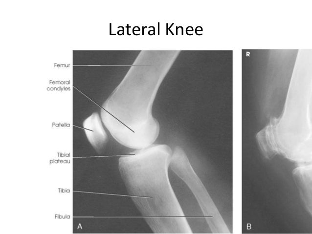 All projections anatomy ap knee 34 ccuart Choice Image