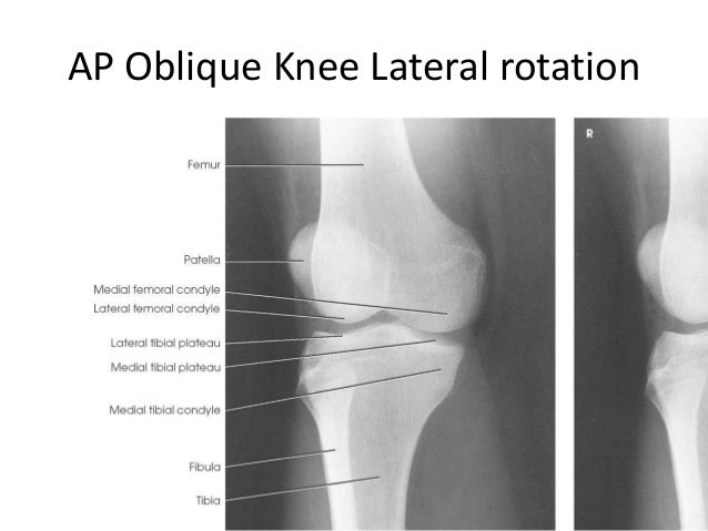 All projections anatomy lateral knee 35 ccuart Images