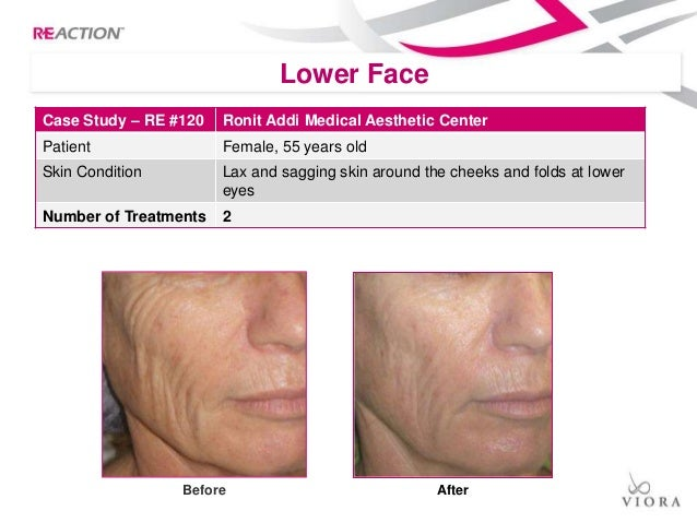 All Reaction case studies B&A's Cellulite, Body Contouring, Skin Tigh…