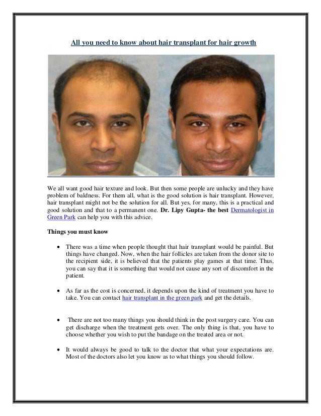 All you need to know about hair transplant for hair growth We all want good hair texture and look. But then some people ar...