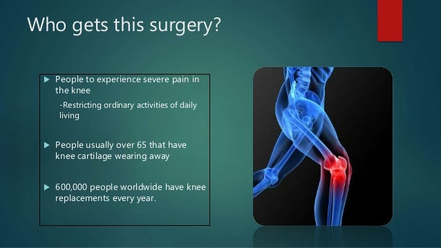 All You Need To Know About Knee Replacement
